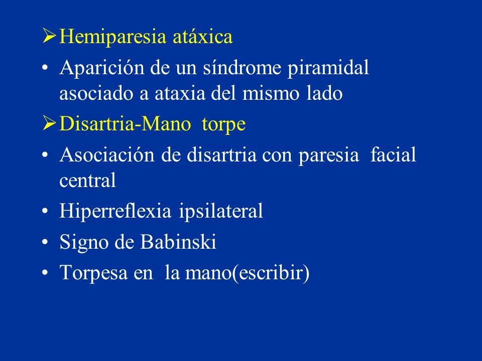Hemiparesia atáxica Aparición de un síndrome piramidal asociado a ataxia del mismo lado. Disartria-Mano torpe.