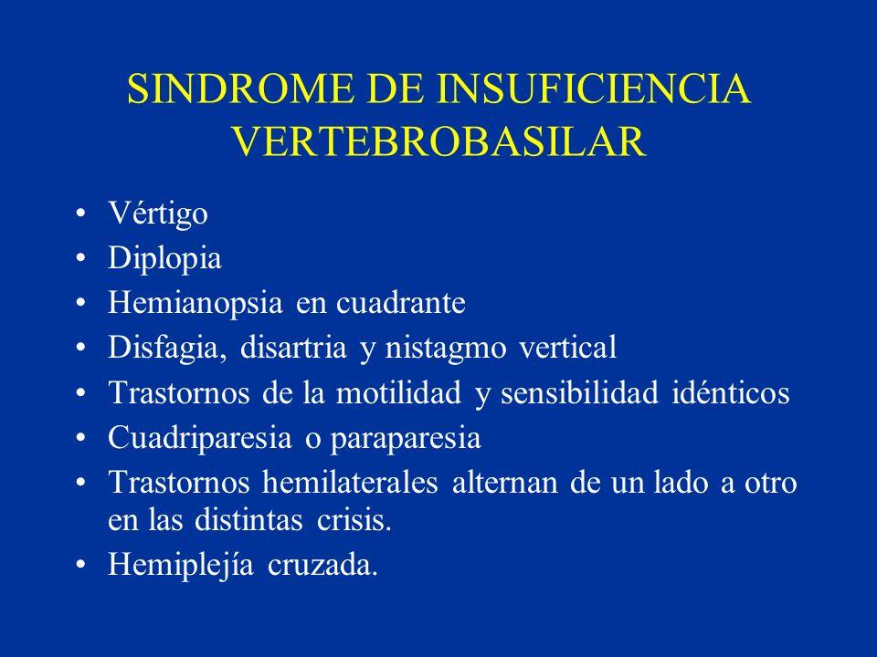 SINDROME DE INSUFICIENCIA VERTEBROBASILAR