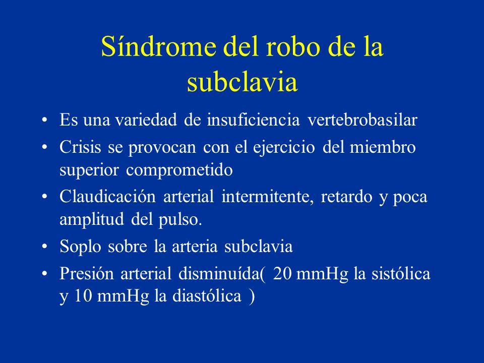 Síndrome del robo de la subclavia