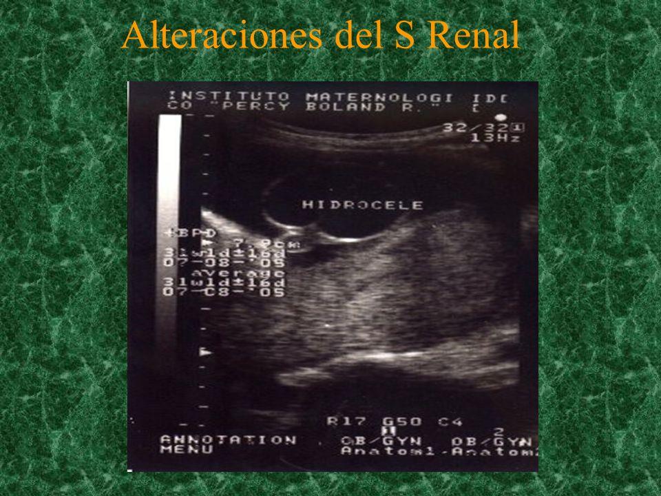 Alteraciones del S Renal