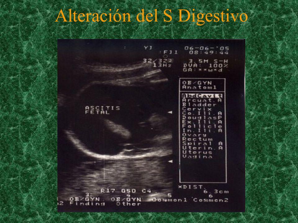 Alteración del S Digestivo
