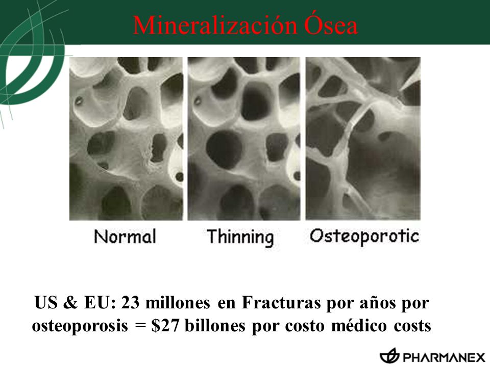 Mineralización ÓseaHere, you see the enlarged structure of a healthy bone. You see a strong architecture of bone substance.