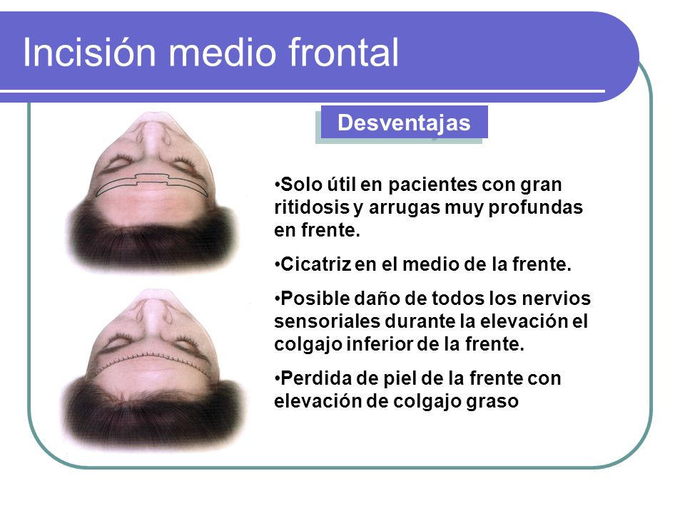 Incisión medio frontal