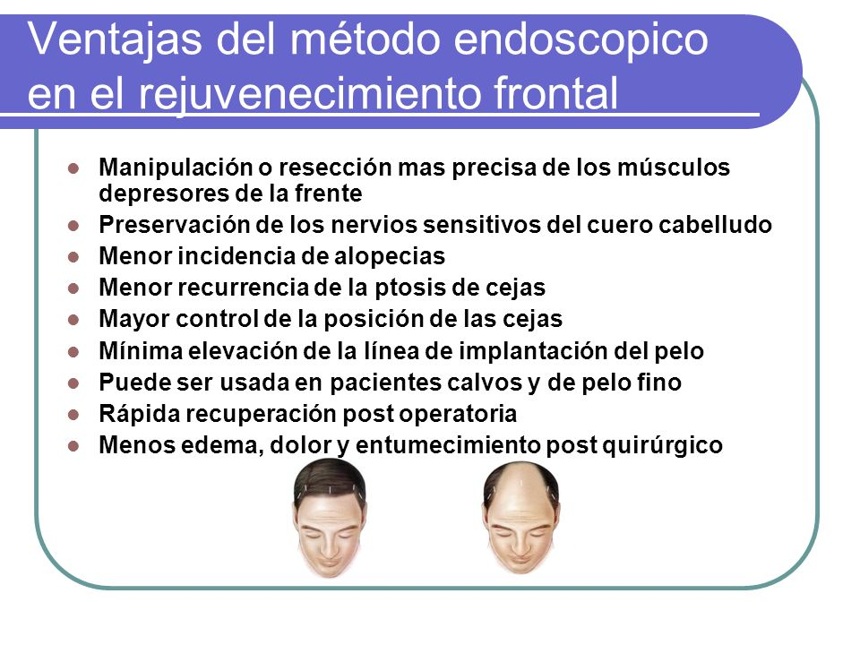Ventajas del método endoscopico en el rejuvenecimiento frontal