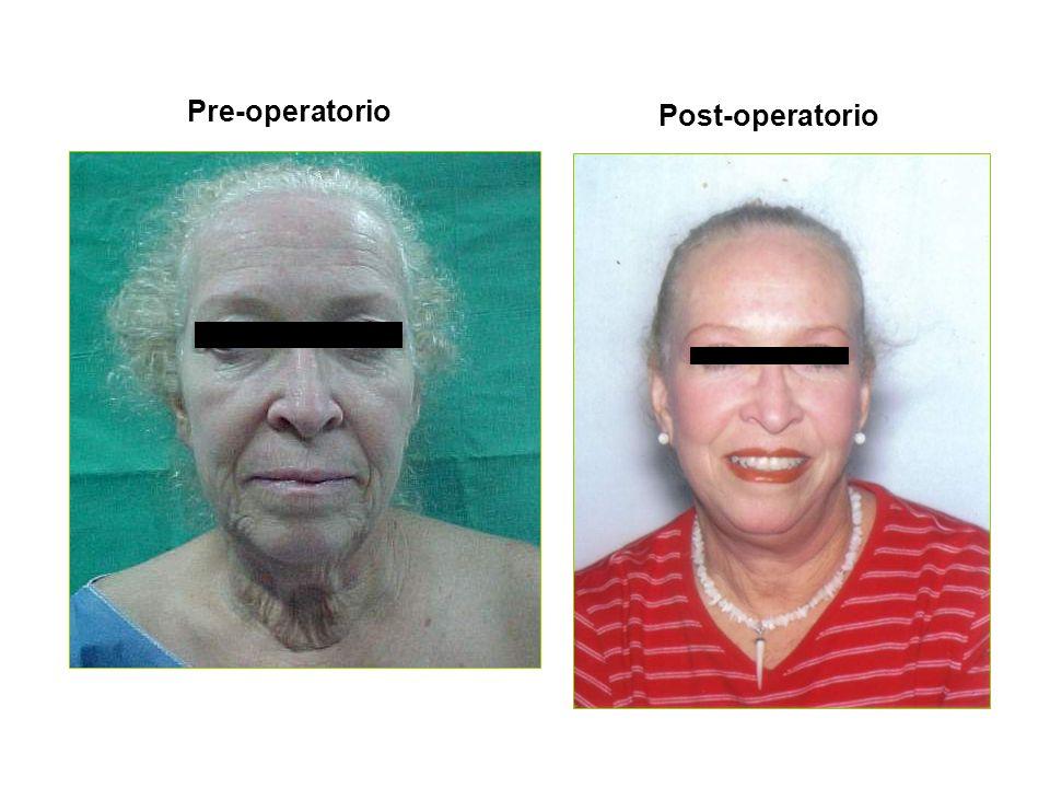 Pre-operatorio Post-operatorio