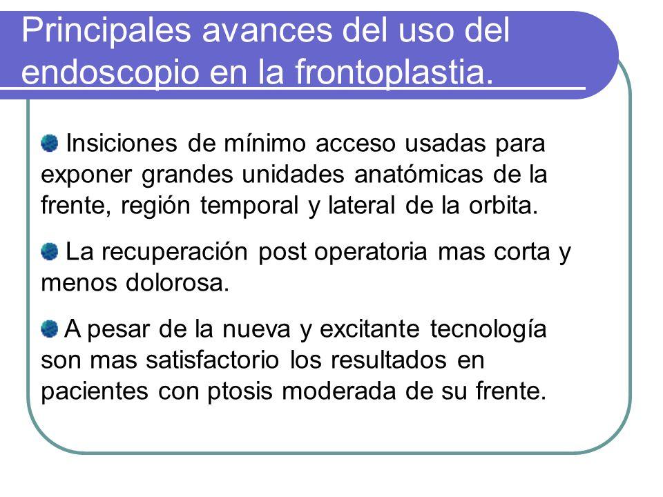 Principales avances del uso del endoscopio en la frontoplastia.