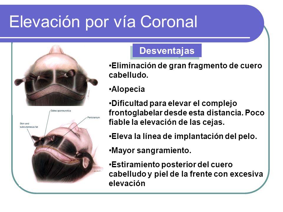 Elevación por vía Coronal