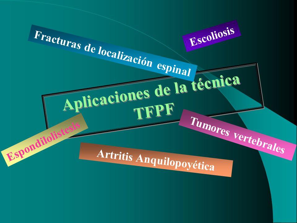 Aplicaciones de la técnica TFPF