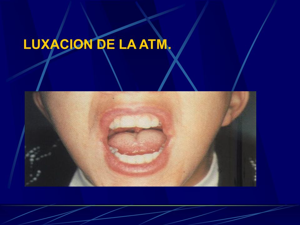 LUXACION DE LA ATM. La luxación de la ATM puede ser motivada por diferentes causas entre las que mencionaremos solamente algunas: