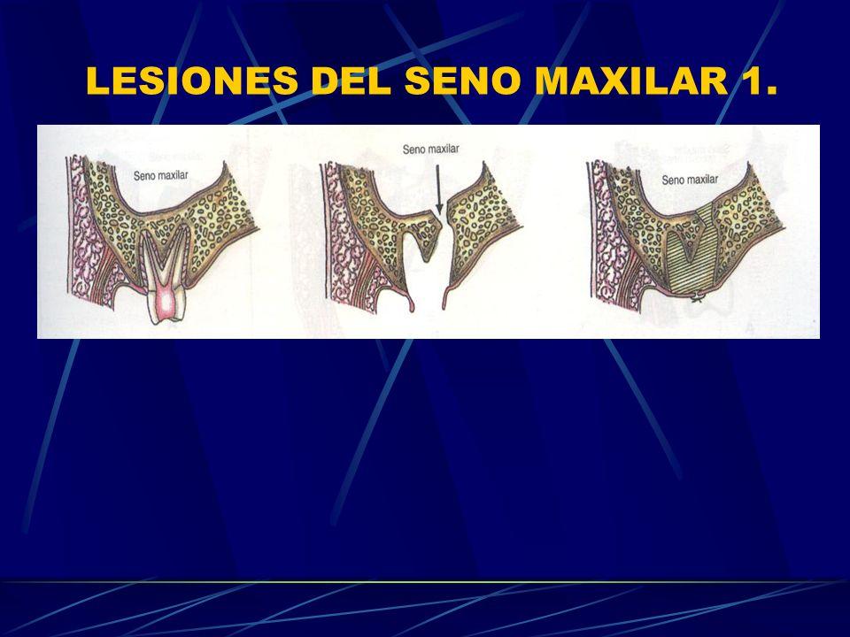 LESIONES DEL SENO MAXILAR 1.
