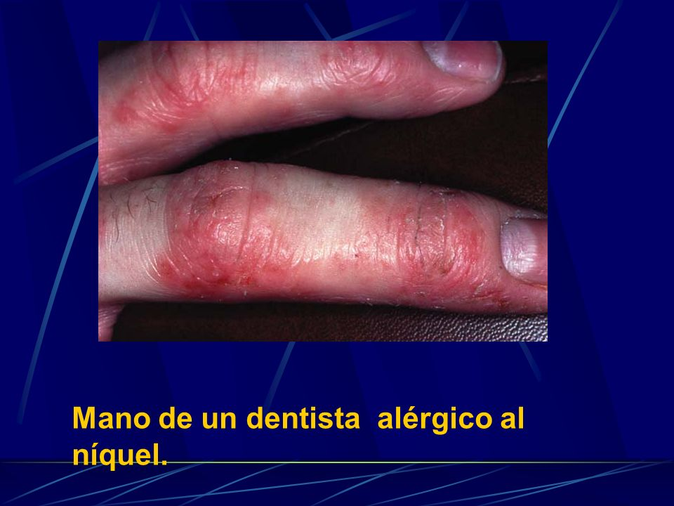 Mano de un dentista alérgico al níquel.