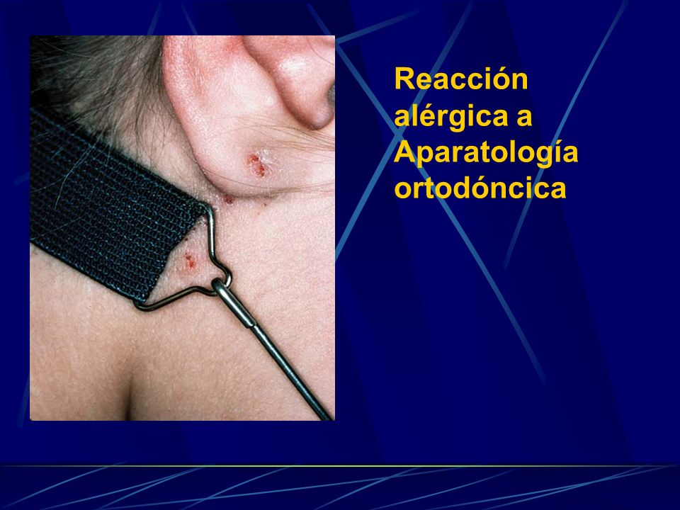 Reacción alérgica a Aparatología ortodóncica
