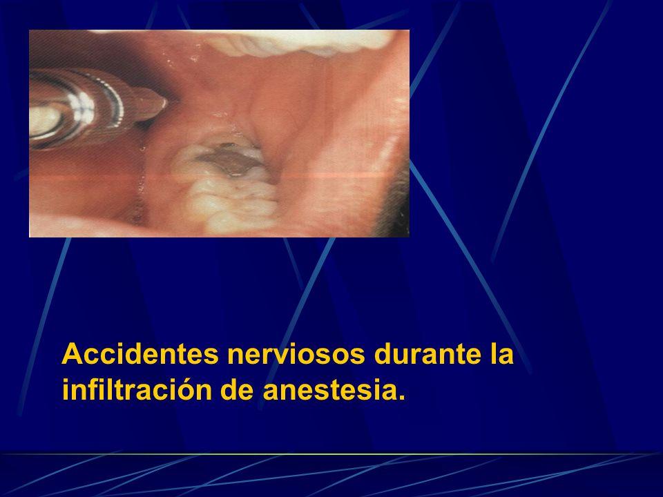 Accidentes nerviosos durante la infiltración de anestesia.