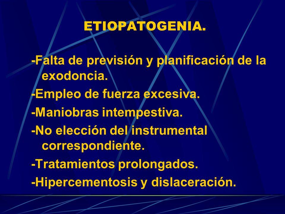 -Falta de previsión y planificación de la exodoncia.