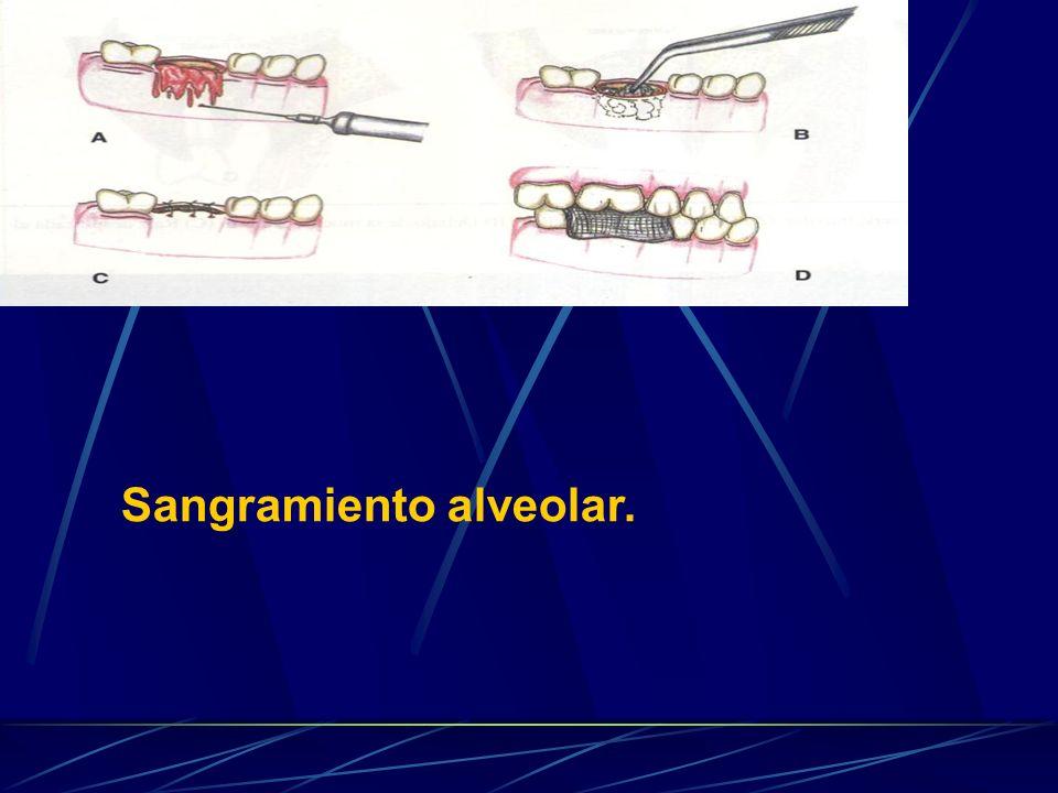 Sangramiento alveolar.
