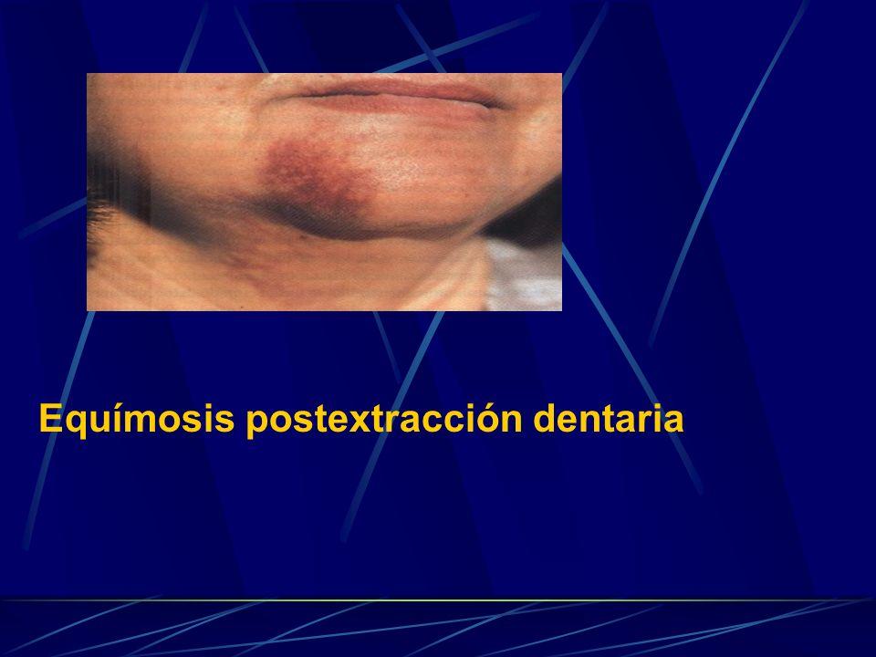 Equímosis postextracción dentaria