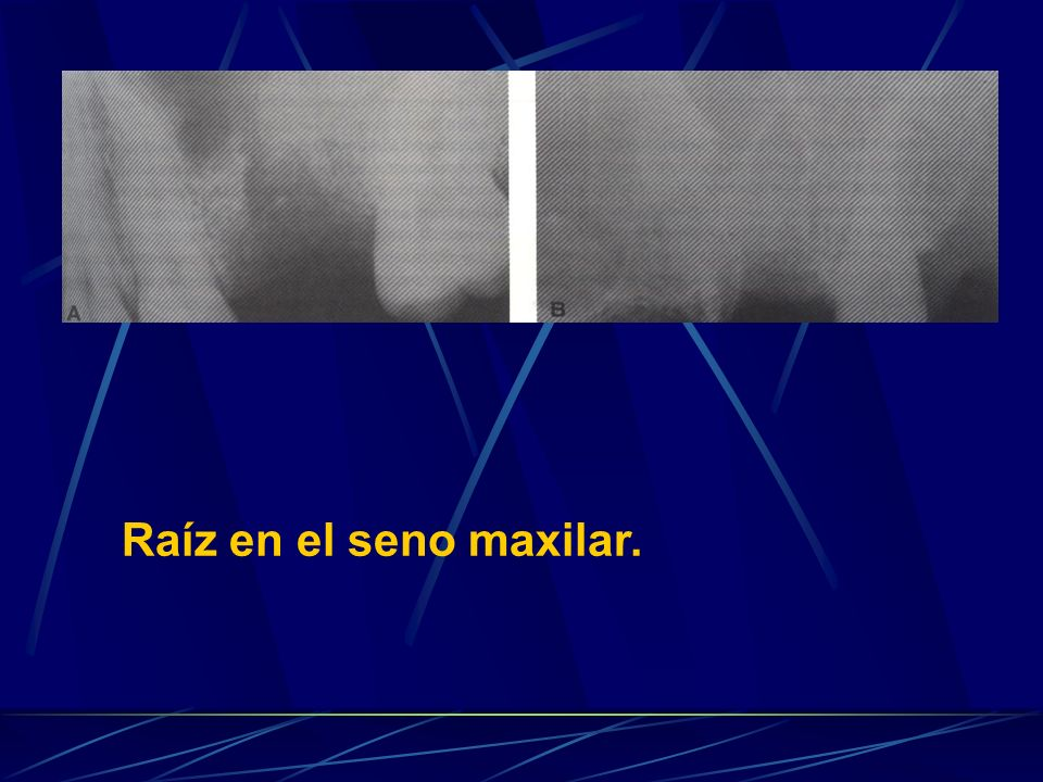 Raíz en el seno maxilar. Desplazamiento dentario al seno maxilar.