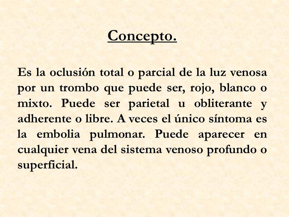 Concepto.