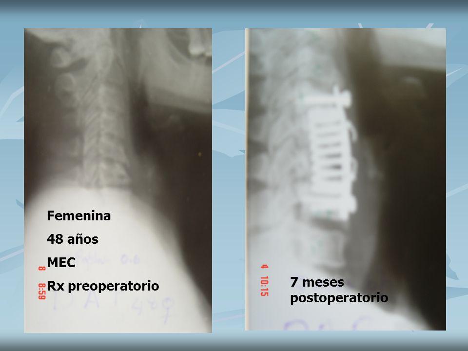 Femenina 48 años MEC Rx preoperatorio 7 meses postoperatorio