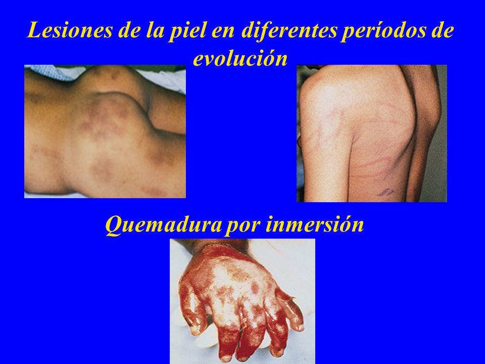 Lesiones de la piel en diferentes períodos de evolución