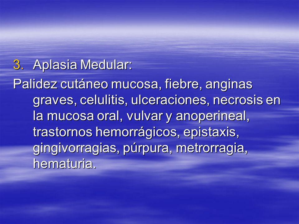 Aplasia Medular: