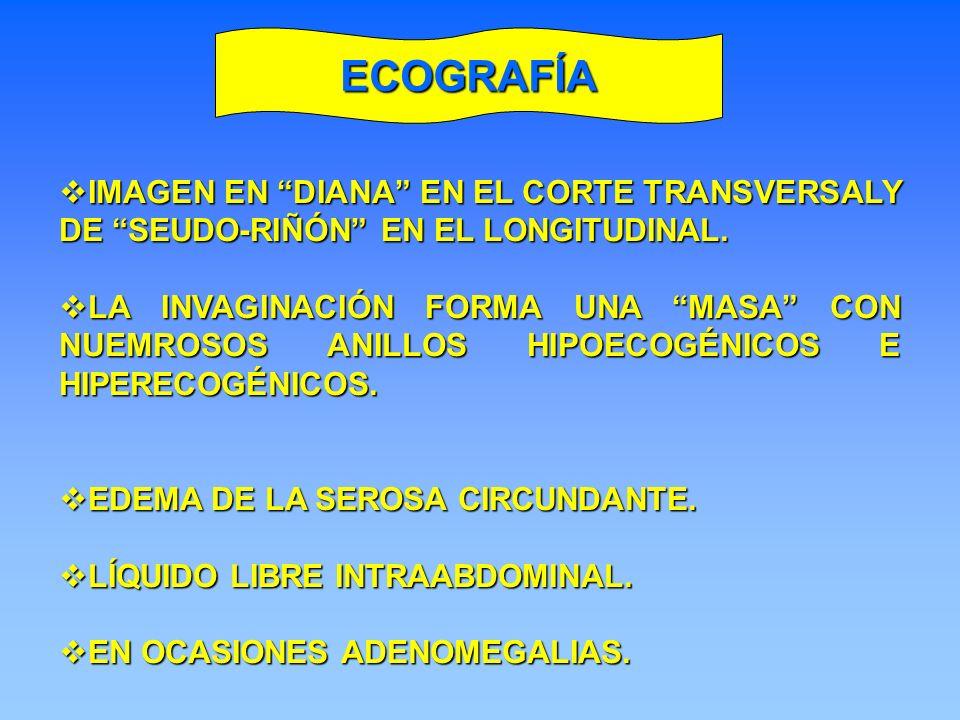 ECOGRAFÍA IMAGEN EN DIANA EN EL CORTE TRANSVERSALY DE SEUDO-RIÑÓN EN EL LONGITUDINAL.