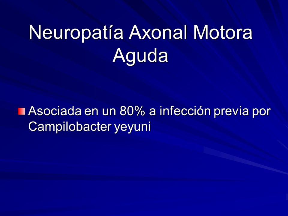 Neuropatía Axonal Motora Aguda