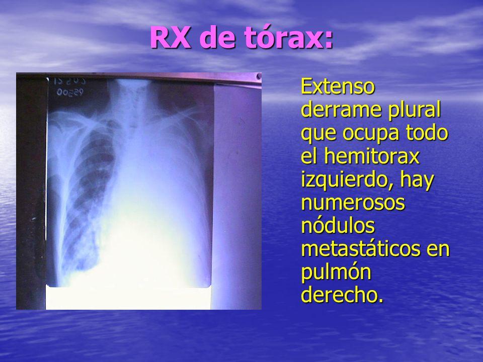 RX de tórax: Extenso derrame plural que ocupa todo el hemitorax izquierdo, hay numerosos nódulos metastáticos en pulmón derecho.