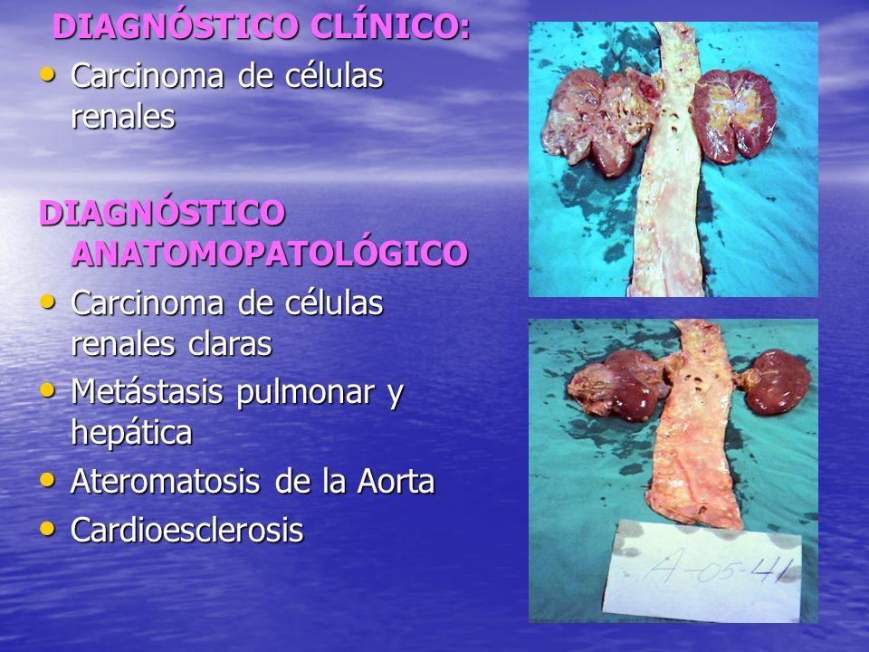 DIAGNÓSTICO CLÍNICO: Carcinoma de células renales. DIAGNÓSTICO ANATOMOPATOLÓGICO. Carcinoma de células renales claras.