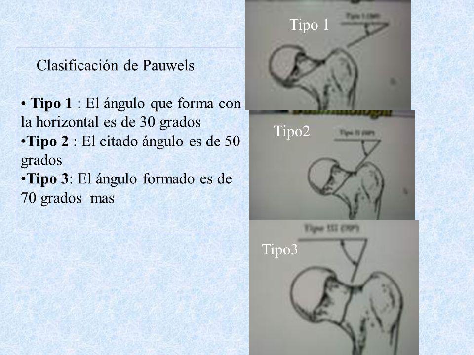 Tipo 1 Clasificación de Pauwels. Tipo 1 : El ángulo que forma con. la horizontal es de 30 grados.
