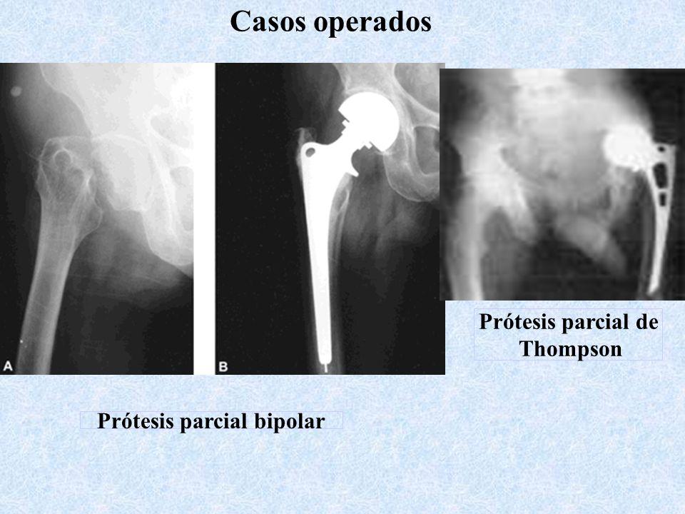 Prótesis parcial bipolar