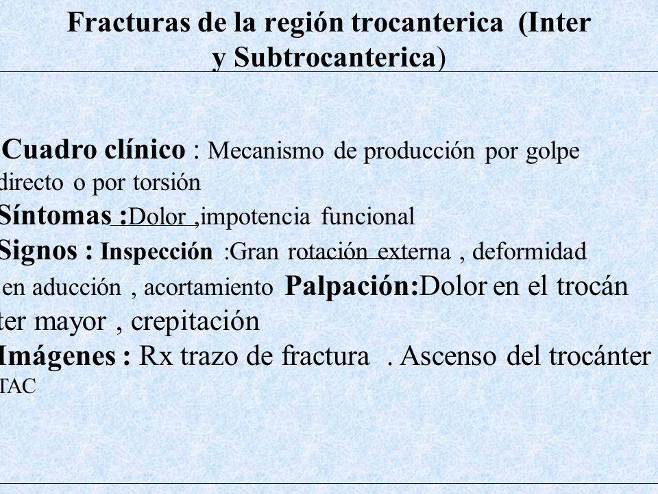 Fracturas de la región trocanterica (Inter y Subtrocanterica)