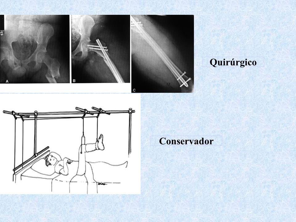 Quirúrgico Conservador
