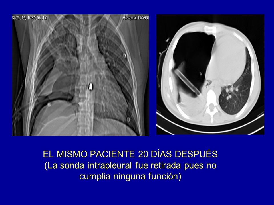 EL MISMO PACIENTE 20 DÍAS DESPUÉS (La sonda intrapleural fue retirada pues no cumplia ninguna función)