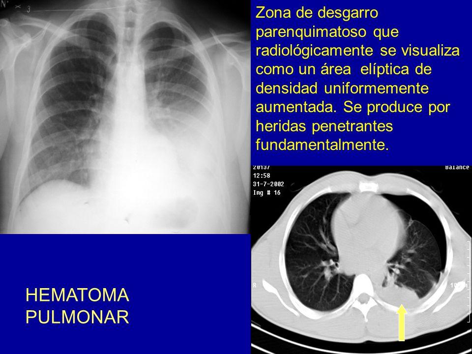 Zona de desgarro parenquimatoso que radiológicamente se visualiza como un área elíptica de densidad uniformemente aumentada. Se produce por heridas penetrantes fundamentalmente.