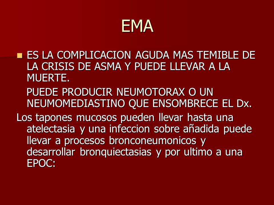 EMA ES LA COMPLICACION AGUDA MAS TEMIBLE DE LA CRISIS DE ASMA Y PUEDE LLEVAR A LA MUERTE.