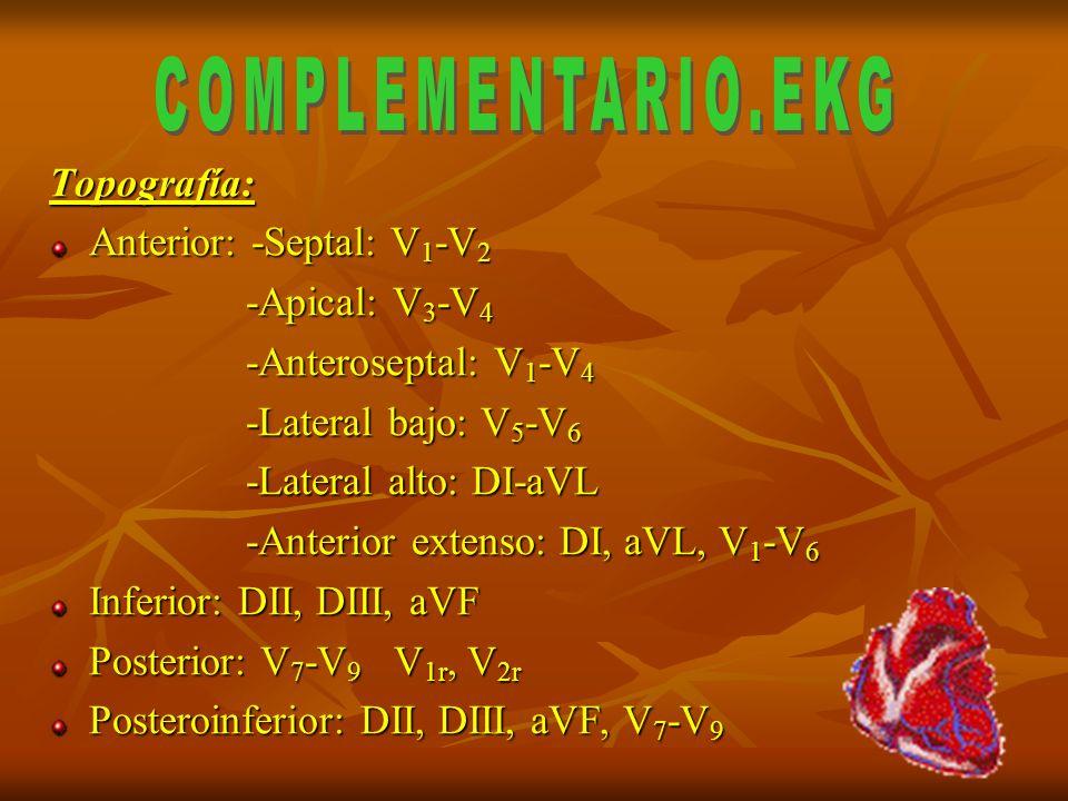 COMPLEMENTARIO.EKG Topografía: Anterior: -Septal: V1-V2 -Apical: V3-V4