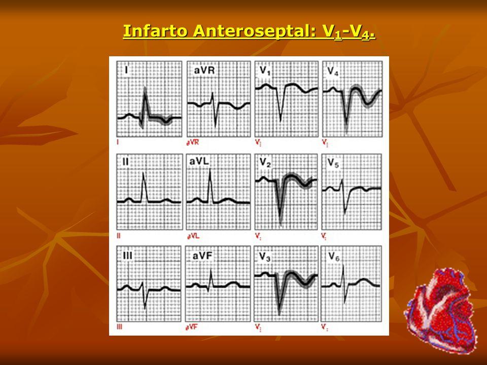 Infarto Anteroseptal: V1-V4.
