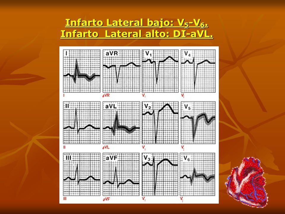 Infarto Lateral bajo: V5-V6. Infarto Lateral alto: DI-aVL.