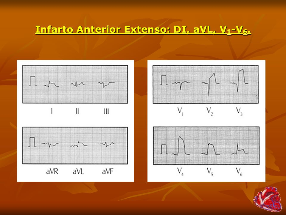 Infarto Anterior Extenso: DI, aVL, V1-V6.