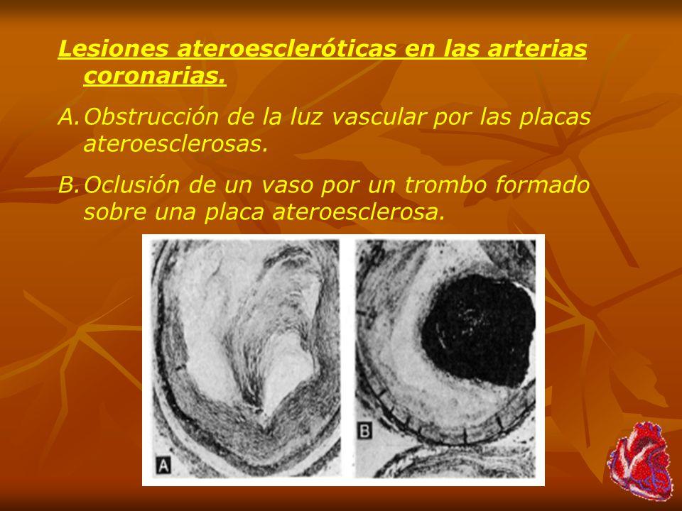 Lesiones ateroescleróticas en las arterias coronarias.