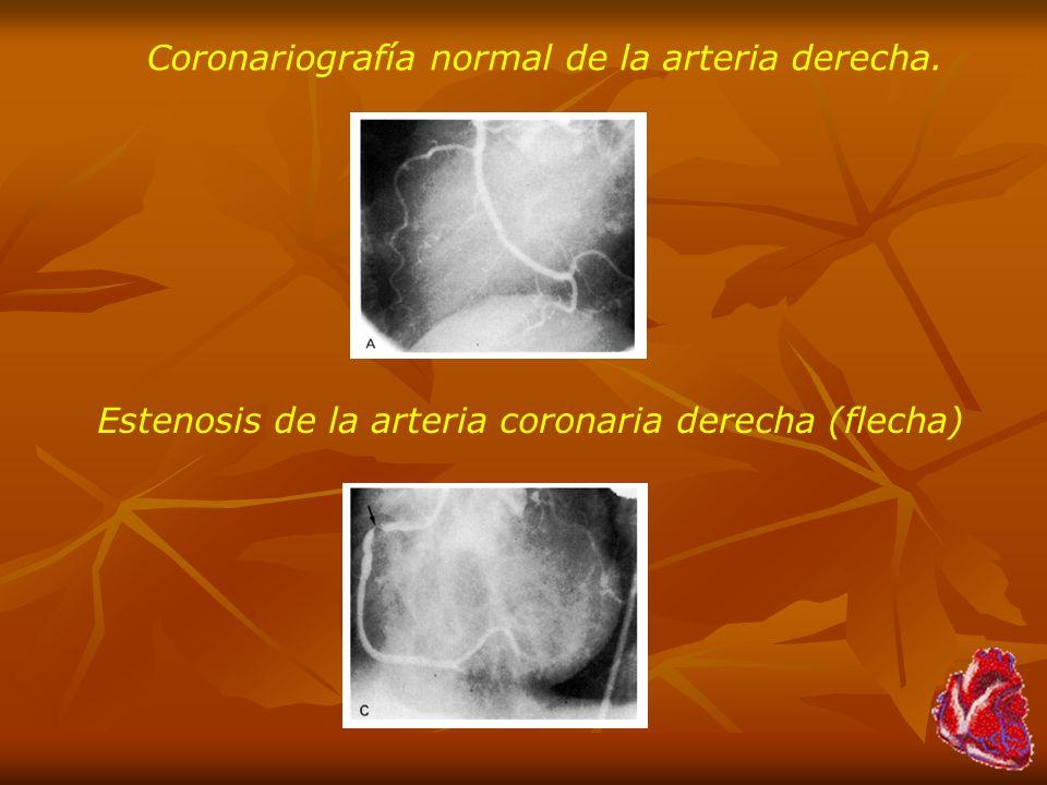 Coronariografía normal de la arteria derecha.