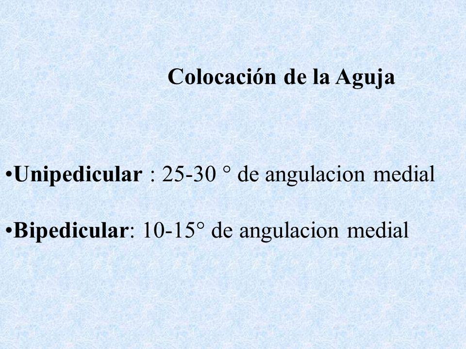 Colocación de la Aguja Unipedicular : 25-30 ° de angulacion medial.