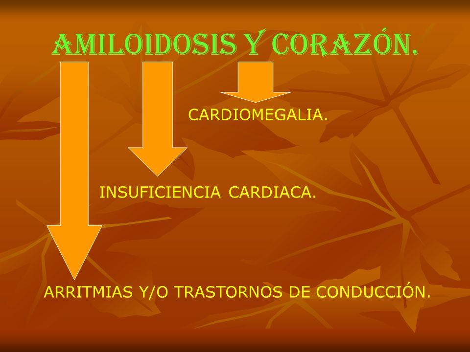 AMILOIDOSIS y corazón. CARDIOMEGALIA. INSUFICIENCIA CARDIACA.