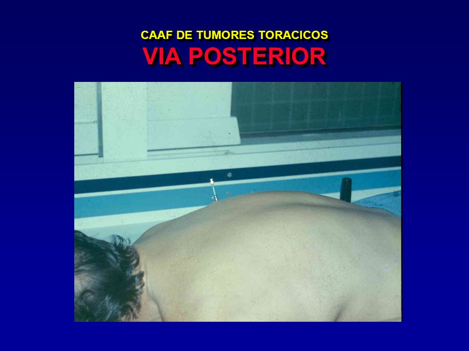 CAAF DE TUMORES TORACICOS VIA POSTERIOR