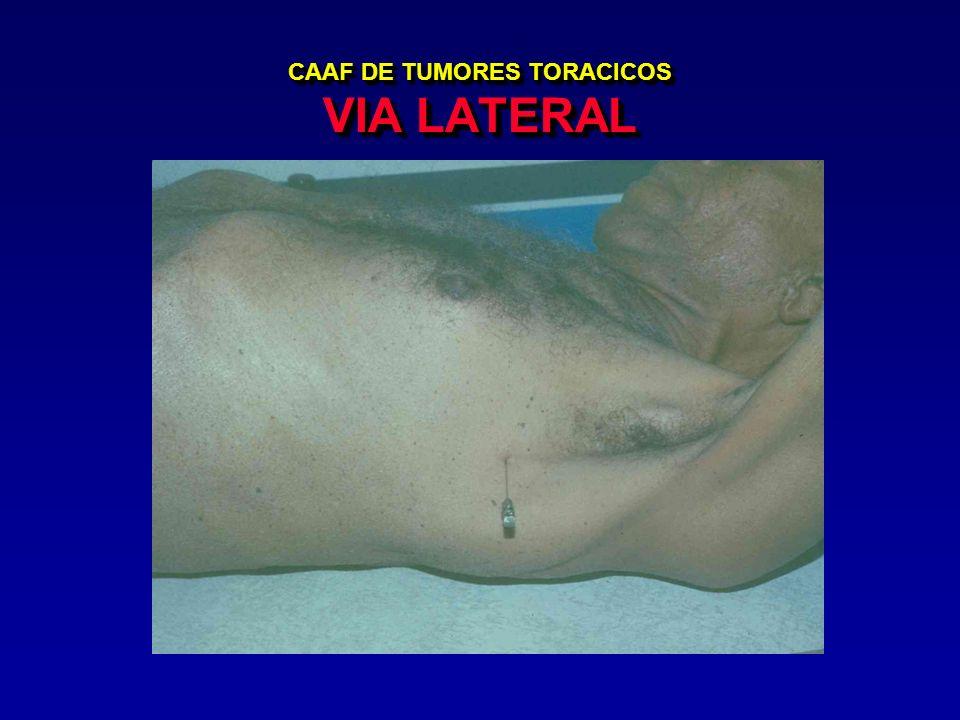 CAAF DE TUMORES TORACICOS VIA LATERAL