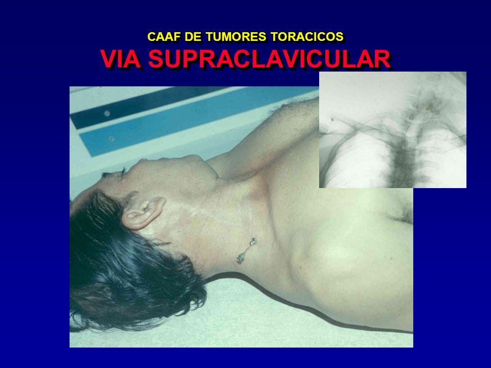 CAAF DE TUMORES TORACICOS VIA SUPRACLAVICULAR