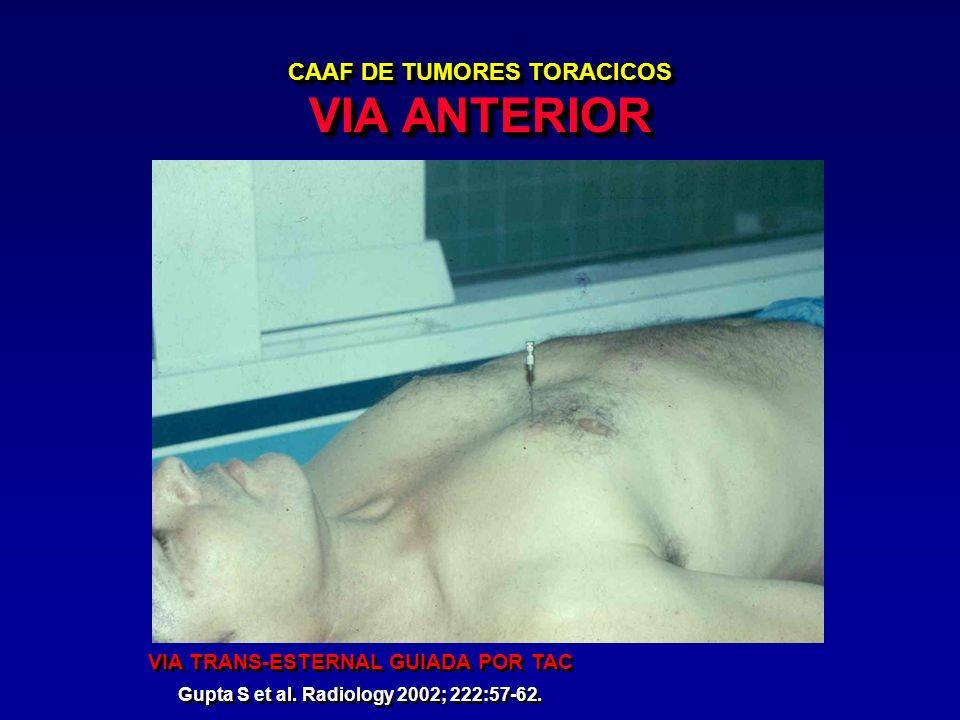 CAAF DE TUMORES TORACICOS VIA ANTERIOR
