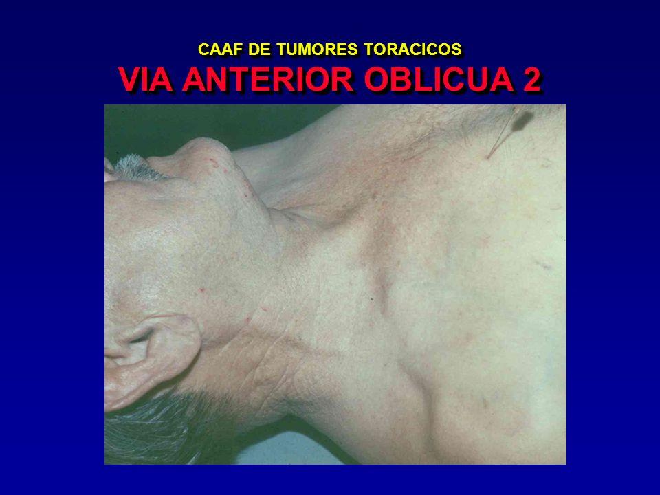 CAAF DE TUMORES TORACICOS VIA ANTERIOR OBLICUA 2