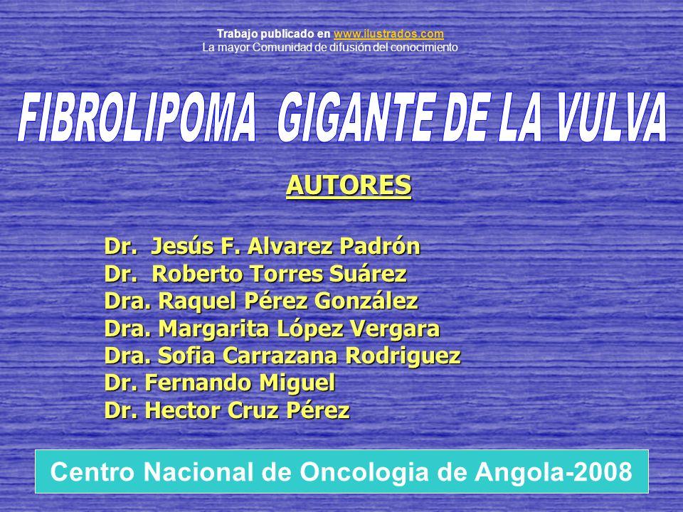 FIBROLIPOMA GIGANTE DE LA VULVA